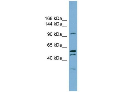 anti-ANO6 (Anoctamin 6) antibody