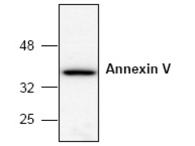 anti Annexin A5 / ANXA5