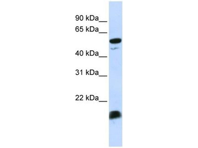 anti-Complement Component 4 Binding Protein, alpha (C4BPA) (Middle Region) antibody