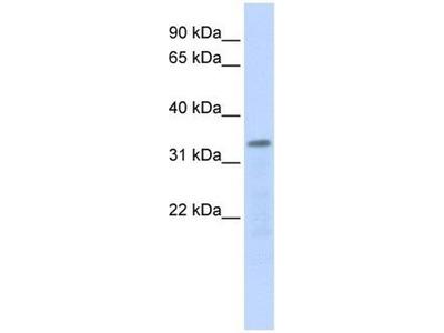 anti-POLR3F antibody
