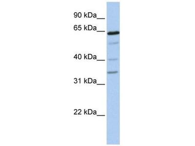 anti-GALNTL1 (GALNT16) antibody