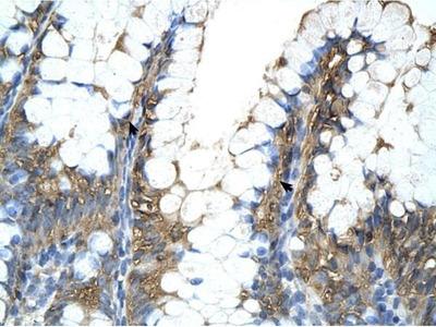 anti-PPIA antibody