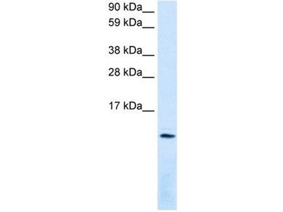 anti-CXCL12 antibody