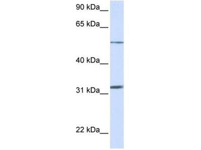 anti-SLC35A5 antibody