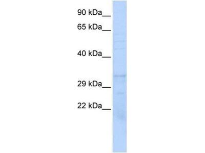anti-Proteasome (Prosome, Macropain) Subunit, beta Type, 1 (PSMB1) antibody