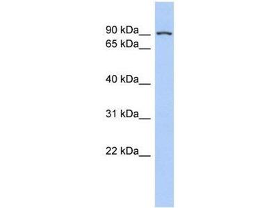 anti-TLE1 antibody