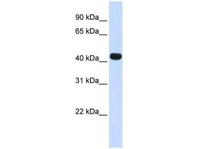 anti-HS3ST3B1 antibody