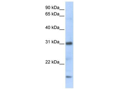anti-Chemokine (C-X-C Motif) Ligand 16 (CXCL16) antibody