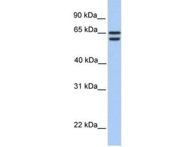 anti-CDYL2 antibody