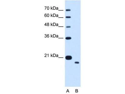 anti-TMEM91 Antibody