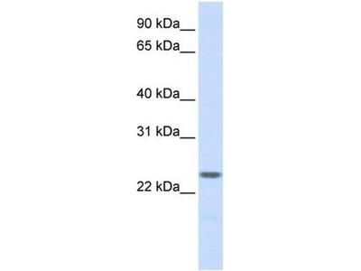 anti-Nucleophosmin/nucleoplasmin 2 (NPM2) antibody