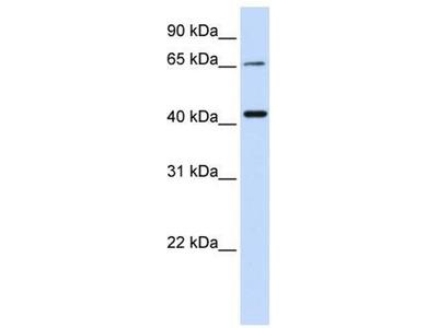 anti-QPCTL antibody