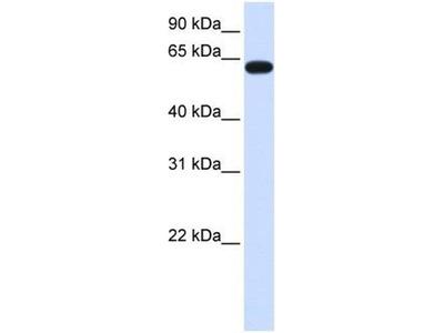 anti-HS6ST3 (hs6st3b) antibody