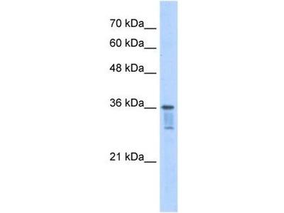 anti-Leucine Zipper Transcription Factor-Like 1 (LZTFL1) (C-Term) antibody