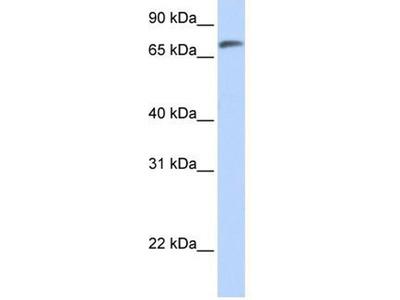 anti-C14ORF37 antibody