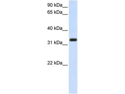 anti-TMEM66 antibody