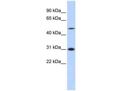 anti-Inhibitor of Growth Family, Member 3 (ING3) (N-Term) antibody