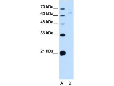 anti-NOX1 (NADPH oxidase 1) antibody