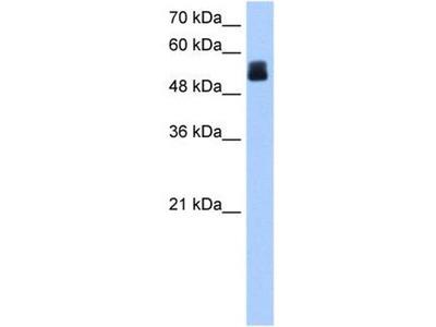 anti-CRISPLD2 antibody