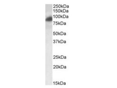 anti-Rab11 Family-Interacting Protein 1 (RAB11FIP1) (Internal Region) antibody