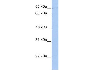 anti-POMT2 antibody