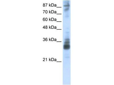 anti-RG9MTD2 Antibody