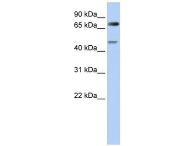 anti-DTL antibody