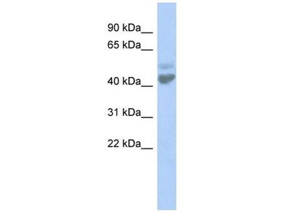 anti-Zinc Activated Ligand-Gated Ion Channel (ZACN) (N-Term) antibody