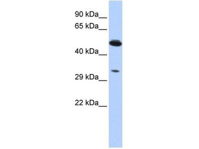 anti-PIK3IP1 antibody