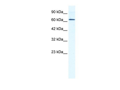 anti-DEAD (Asp-Glu-Ala-Asp) Box Polypeptide 21 (DDX21) antibody
