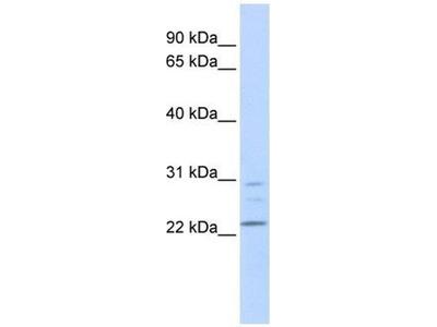 anti-Lysophospholipase I (LYPLA1) (Middle Region) antibody