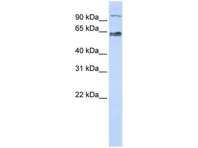 anti-PPWD1 antibody