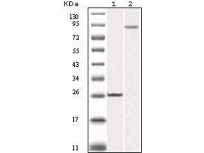 anti-IKBKB antibody