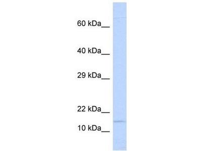 anti-NINJ1 (Ninjurin 1) antibody