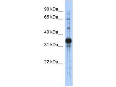 anti-chondroadherin Antibody