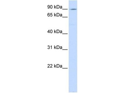 anti-ATPase, Ca++ Transporting, Type 2C, Member 1 (ATP2C1) (C-Term) antibody