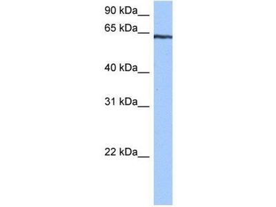 anti-TTC6 antibody