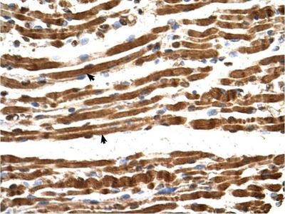 anti-N(alpha)-Acetyltransferase 16, NatA Auxiliary Subunit (NAA16) (Middle Region) antibody