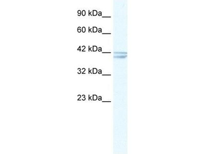 anti-CHRNA7 antibody