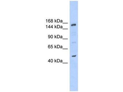 anti-SNF2 Histone Linker PHD RING Helicase, E3 Ubiquitin Protein Ligase (SHPRH) antibody