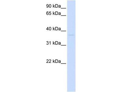 anti-GDAP1L1 antibody