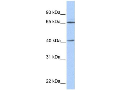 anti-GLA antibody