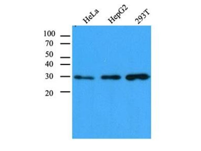 anti-Carbonyl Reductase 1 (CBR1) antibody