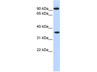 anti-Ext2 (EXT3) antibody