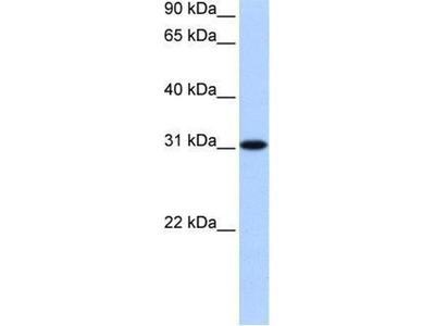 anti-TNRC18 antibody