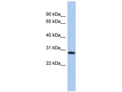 anti-LysM, Putative Peptidoglycan-Binding, Domain Containing 1 (LYSMD1) (N-Term) antibody