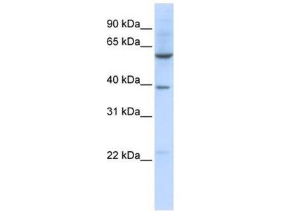 anti-SLC35F3 antibody