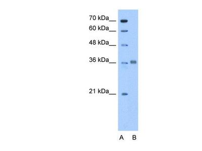 anti-ALDOC (ALDOA) antibody