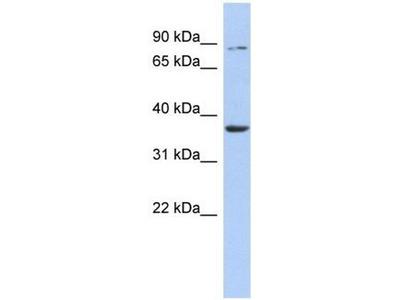 anti-HS3ST1 antibody