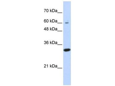 anti-LRRC57 antibody